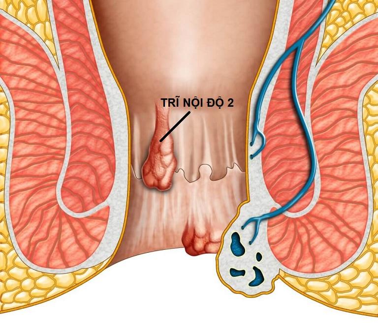 Bệnh trĩ nội độ 2