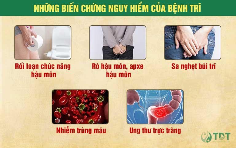 Một số biến chứng nguy hiểm của bệnh trĩ