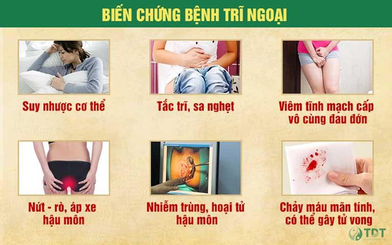 Một số biến chứng nguy hiểm của bệnh trĩ ngoại