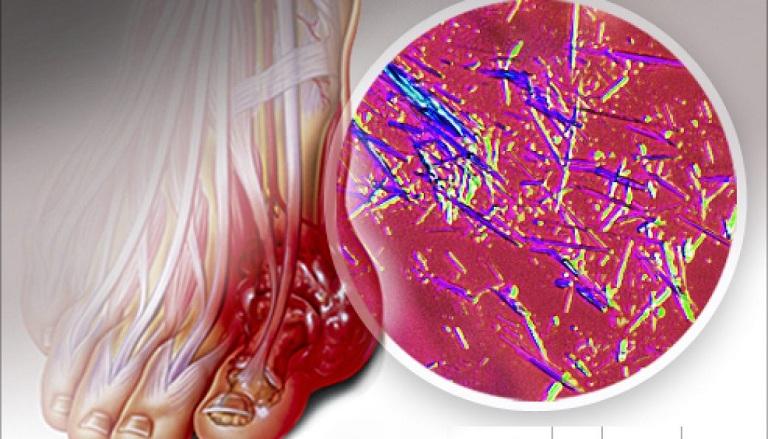 Cách làm giảm axit uric máu