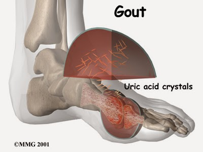 gout-tri-the-nao