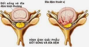 thuoc-chua-va-phuong-phap-dieu-tri-benh-thoat-vi-dia-dem-hieu-qua-2