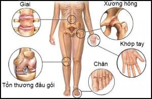 benh-xuong-khop1