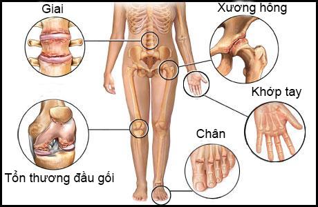 Kết quả hình ảnh cho điều trị bệnh xương