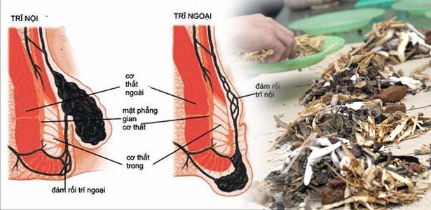 cong-trinh-nghien-cuu-bai-thuoc-da-tri-benh-tri-cua-nguoi-Hmong