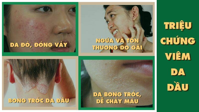 triệu chứng viêm da tiết bã (viêm da dầu)