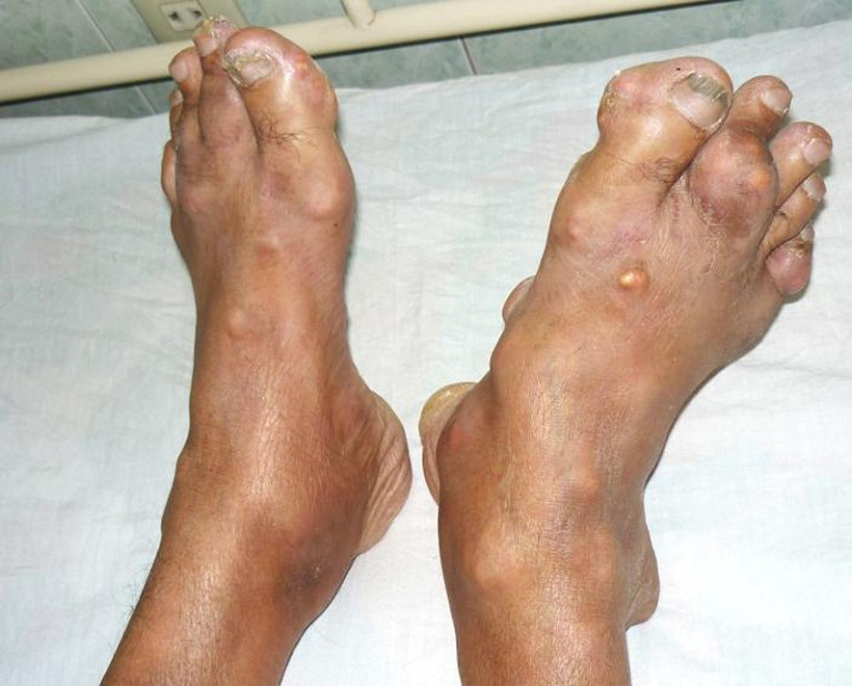 Khớp nổi hạt tophi là dấu hiệu của bệnh gút