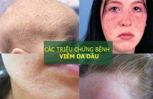 Hình ảnh triệu chứng viêm da dầu thường gặp