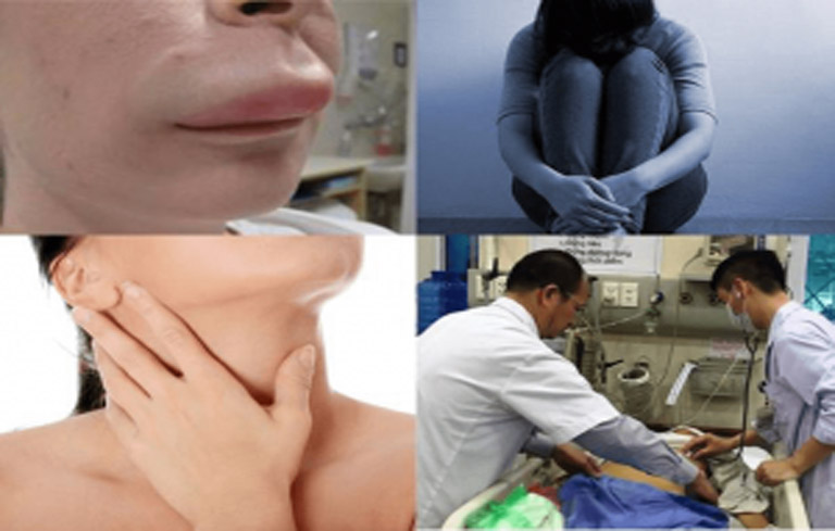 Những biến chứng của mề đay ảnh hưởng rất lớn để sức khỏe và tinh thần của người bệnh