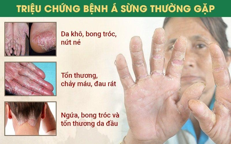 Triệu chứng bệnh á sừng