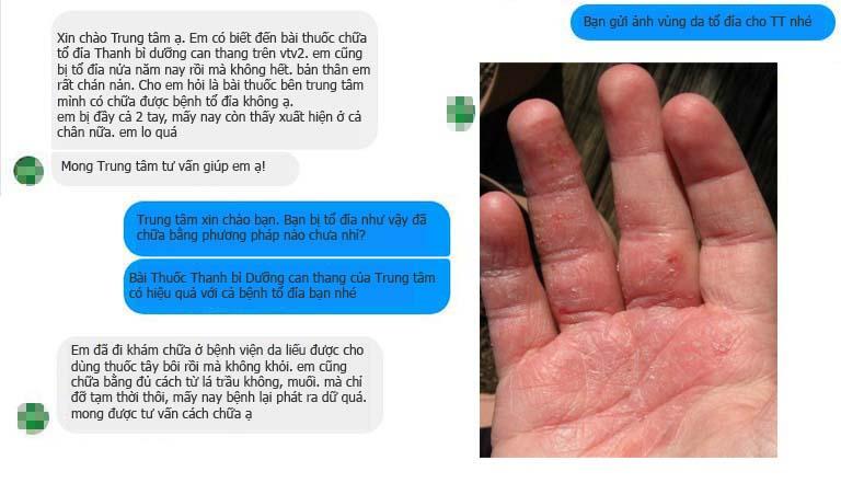 Tin nhắn qua Messenger của Trung tâm hỏi về bài thuốc chữa tổ đỉa