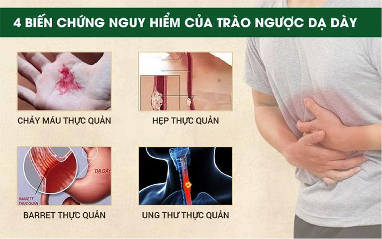 Biến chứng của trào ngược dạ dày thực quản
