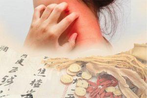 Bệnh viêm da cơ địa