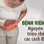bệnh viêm gan