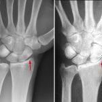 Tình trạng viêm khớp ở cổ tay