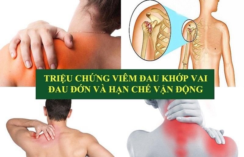 Triệu chứng viêm đau khớp vai