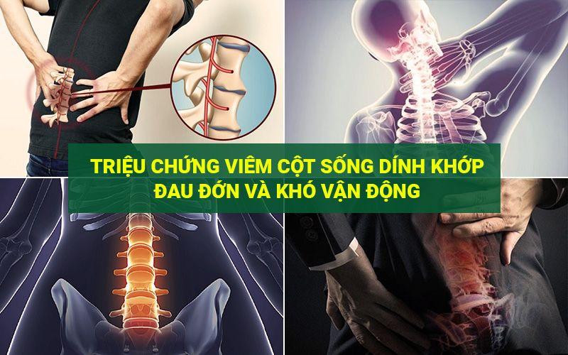 Triệu chứng viêm cột sống dính khớp đau đớn và khó vận động