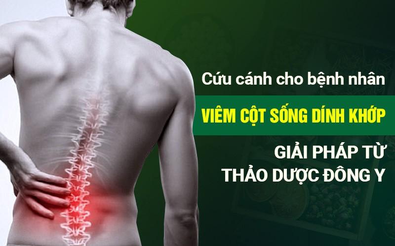 Giải pháp từ thảo dược Đông y - Cứu cánh cho bệnh nhân viêm cột sống dính khớp