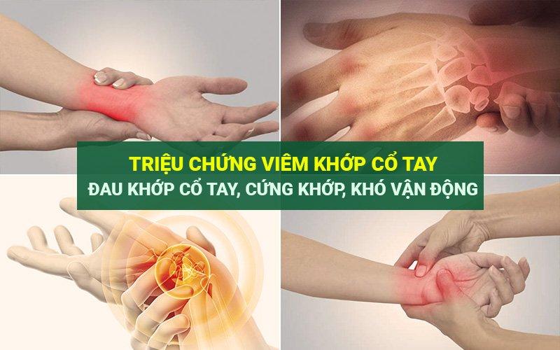 Triệu chứng viêm khớp cổ tay