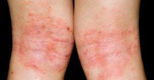 Hình ảnh bệnh chàm (eczema)