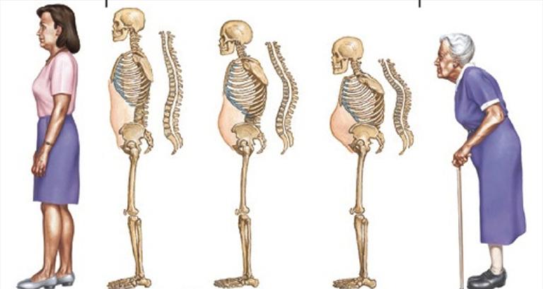 dấu hiệu nhận biết loãng xương