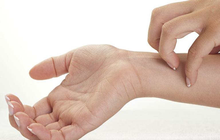 nguyên nhân gây bệnh viêm da