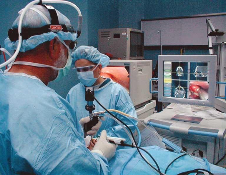 cách điều trị viêm xoang sàng bằng phẫu thuật
