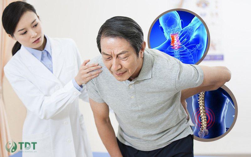 Triệu chứng vôi hoá cột sống