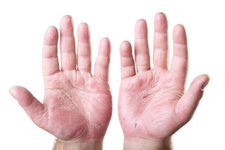 Cách điều trị viêm da cơ địa ở tay