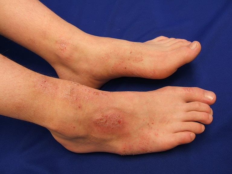 Hình ảnh viêm da cơ địa ở chân