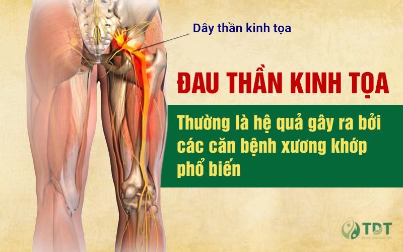 Nguyên nhân phổ biến gây đau thần kinh tọa là do các bệnh xương khớp