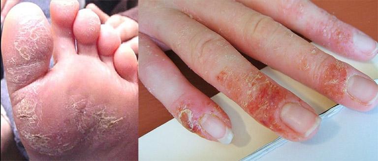 Hình ảnh bệnh chàm ở tay và chân