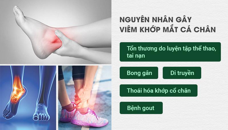 Nguyên nhân dẫn tới viêm khớp mắt cá chân