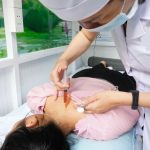 Thủy châm mang lại nhiều hiệu quả vượt trội, hỗ trợ điều trị bệnh hiệu quả