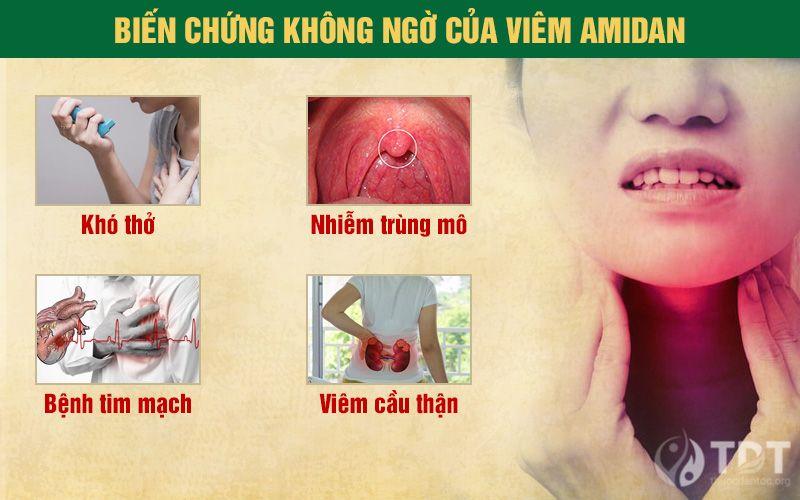 Viêm amidan biến chứng nguy hiểm