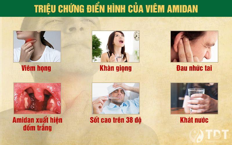 Triệu chứng viêm amidan