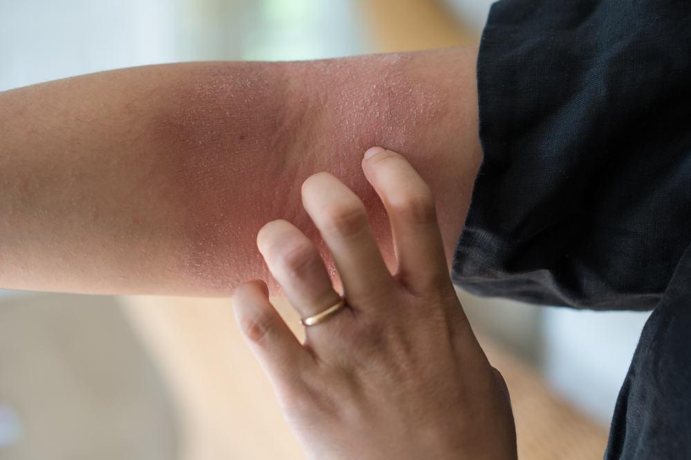 Bệnh viêm da cơ địa có nguy hiểm không