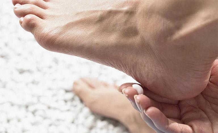 Sử dụng kem bôi không kê đơn để điều trị viêm da cơ địa ở chân