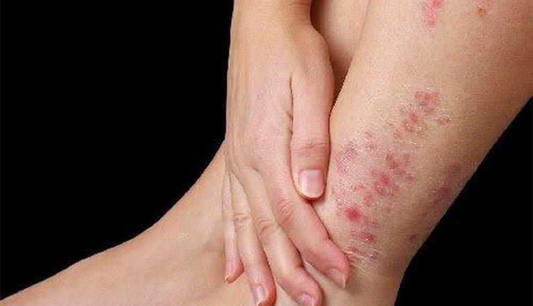 Giữ ẩm cho chân để hạn chế tình trạng viêm da cơ địa