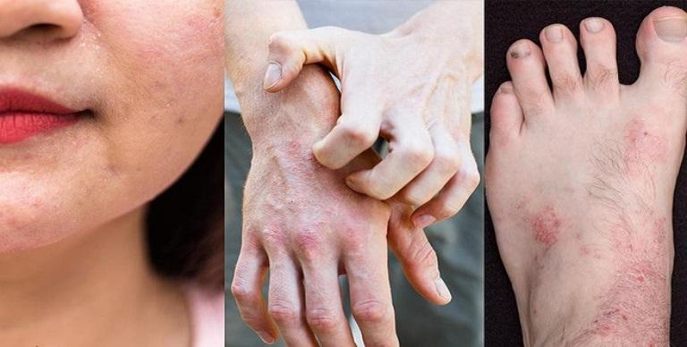 Hình ảnh viêm da cơ địa ở người lớn tại các vị trí thường gặp