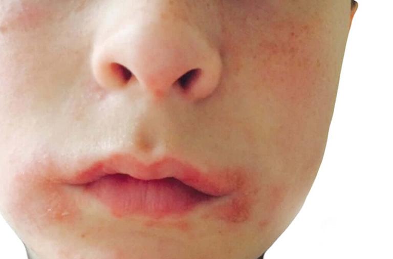 Viêm da cơ địa quanh miệng gây ngứa ngáy, khó chịu và mất thẩm mỹ