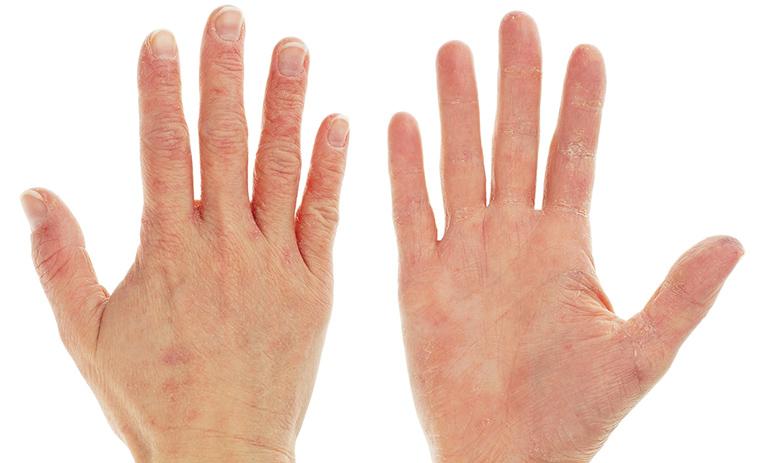 nguyên nhân gây bệnh viêm da tiếp xúc do dị ứng