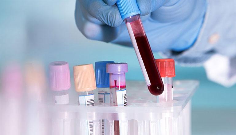 chấn đoán nhiễm nấm Candida
