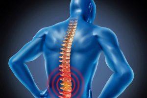 thoái hóa cột sống lưng có nguy hiểm không