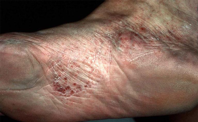 dấu hiệu bệnh tổ đỉa ở chân