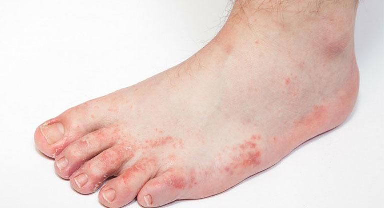 triệu chứng bệnh tổ đỉa ở chân