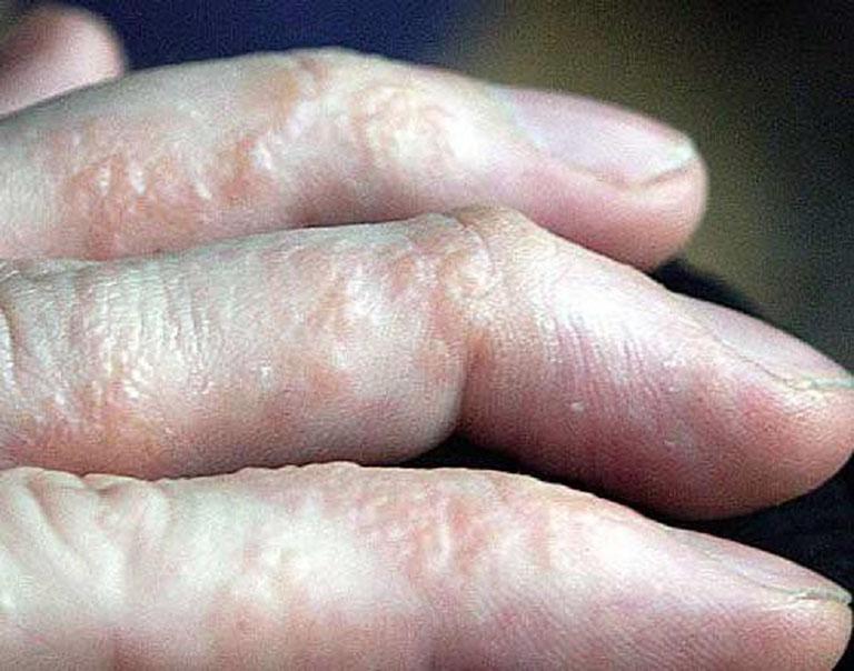 Bệnh tổ đỉa ở tay