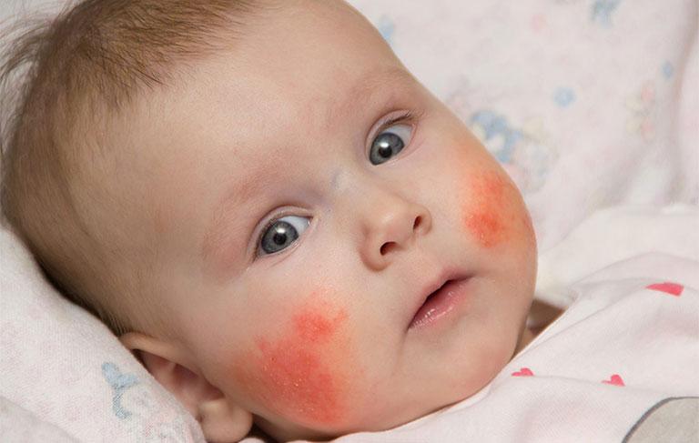bệnh viêm da dị ứng ở trẻ em