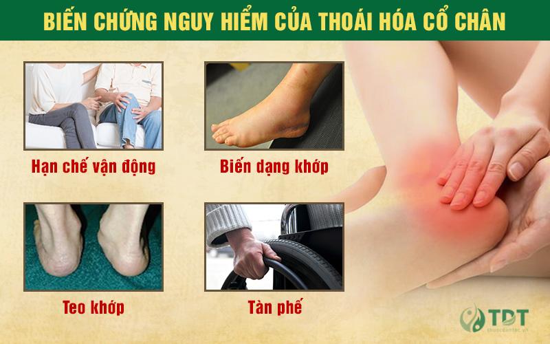biến chứng nguy hiểm của bệnh thoái hóa cổ chân