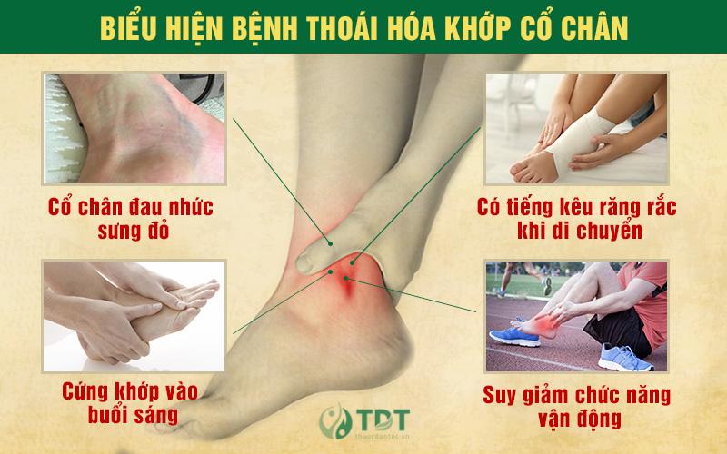 Triệu chứng bị thoái hóa cổ chân